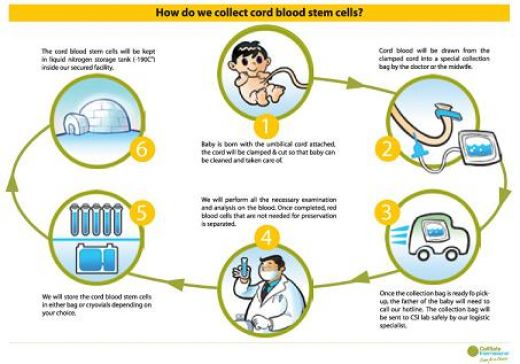 Stem Cell Research Umbilical Cord