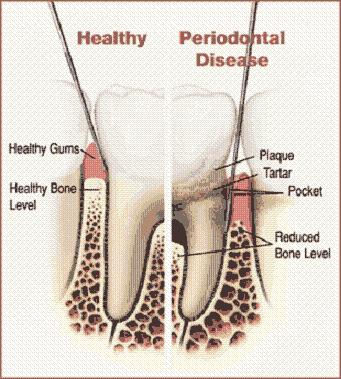 Tooth diagram tooth chart healthy tooth chart healthy teeth alt ccuart Gallery
